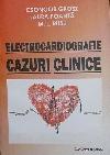 http://www.laurapoanta.ro/Poze/carti/Electrocardiogafie_1.jpg