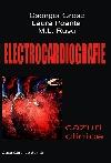http://www.laurapoanta.ro/Poze/carti/Electrocardiografie.jpg